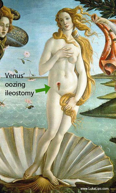 Botticelli Venus with oozing bile from ileostomy